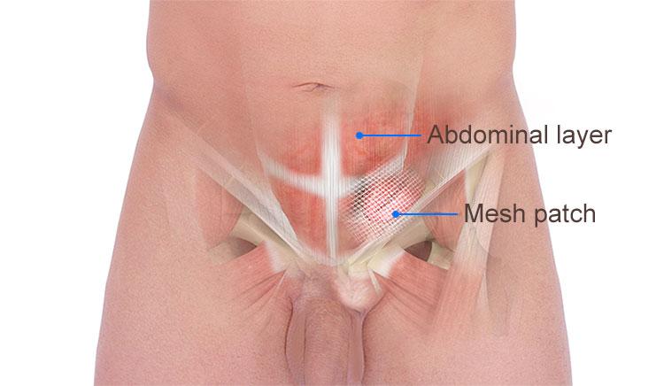 Inguinal hernia repair anus pain